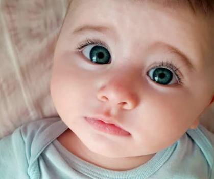 Penyebab mata juling pada anak
